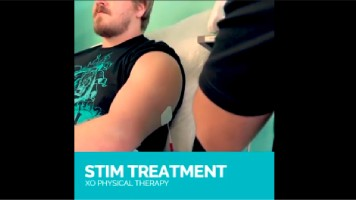 STIM Therapy | XO Physical Therapy